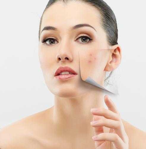 The truth about acne: Is it contagious or a result of our genes?