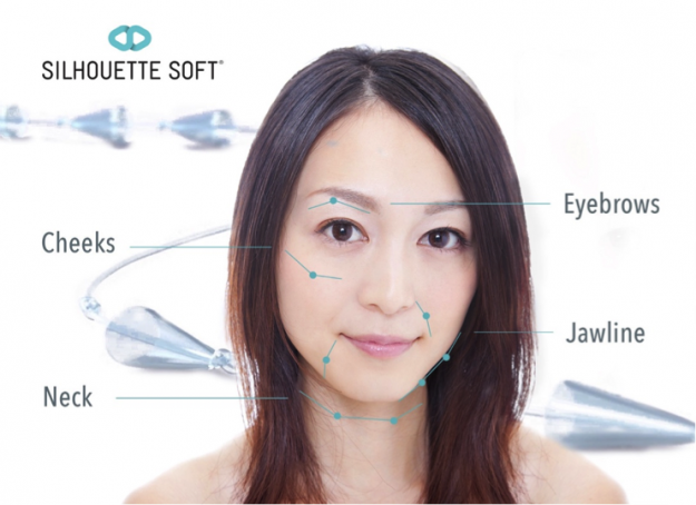 Non-Invasive Thread Lift: What to consider before undergoing the